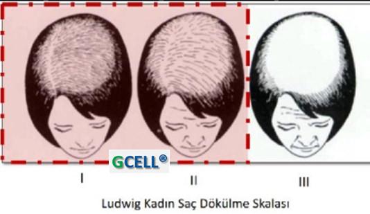 ludwig-kadin-sac-dokulme-skalasi